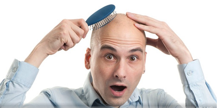 Hypnosis- Overcome Baldness Using Self Hypnosis